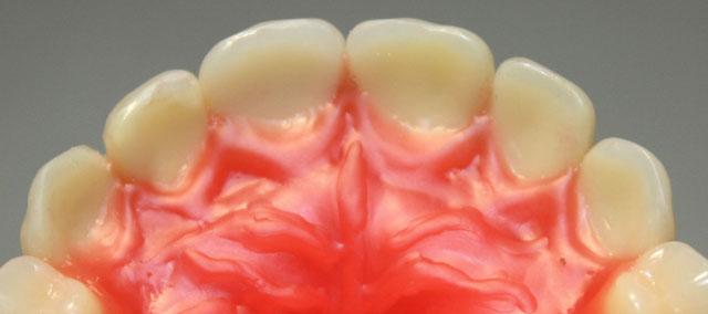 Півколо верхніх фронтальних зубів