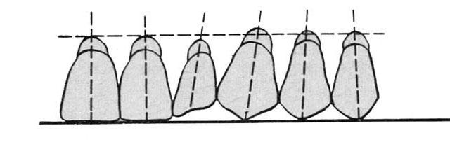 Постановка штучних зубів відносно протетичної площини