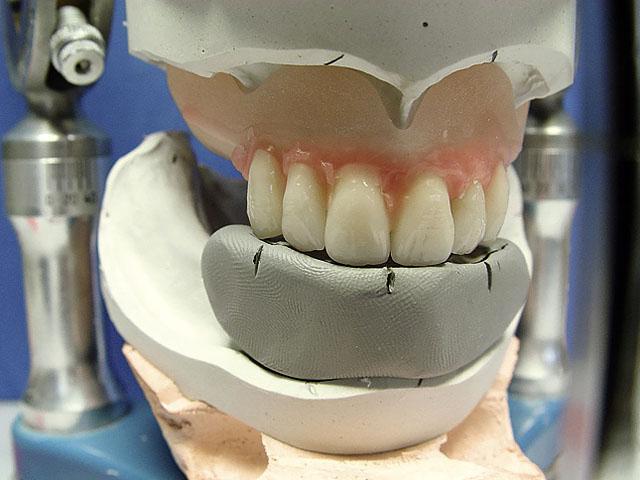 Постановка верхніх фронтальних зубів згідно орієнтирів перенесених на силіконовий ключ
