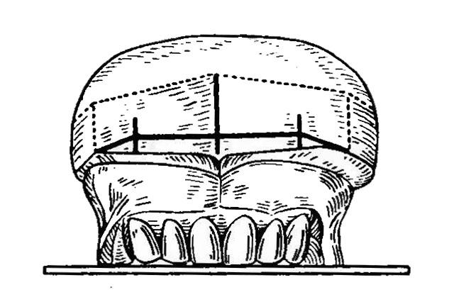 Постановка верхніх фронтальних зубів згідно орієнтирів
