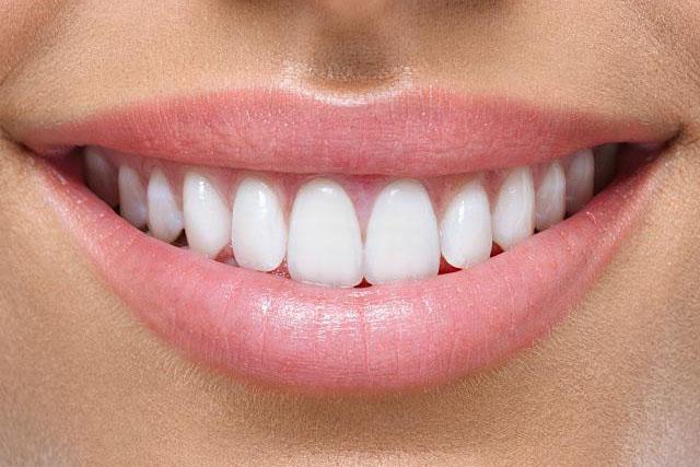 Лінія посмішки разом з вестибулярним краєм верхнього оклюзійного валика визначає довжину зубів.