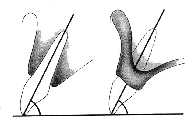 Розташування фронтальних зубів у повних знімних протезах має наближатись до розташування природних зубів