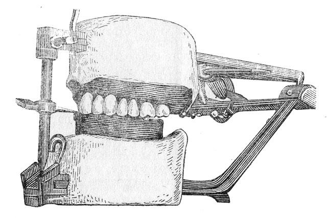 Ілюстративне фото «Постановки штучних зубів по склу за М. Є. Васильєвим»