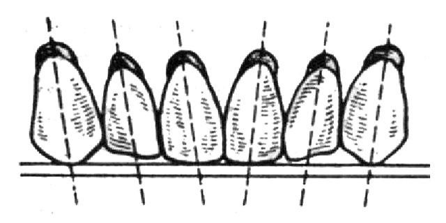 Розташування передніх зубів у повних знімних протезах відносно протетичної площини