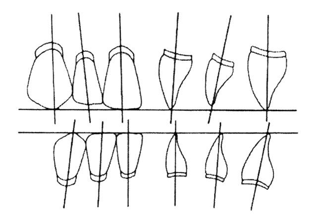 Напрям осей передніх зубів у повному знімному протезі
