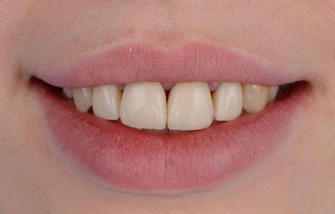 Фото 19. Посмішка пацієнтки після завершення роботи