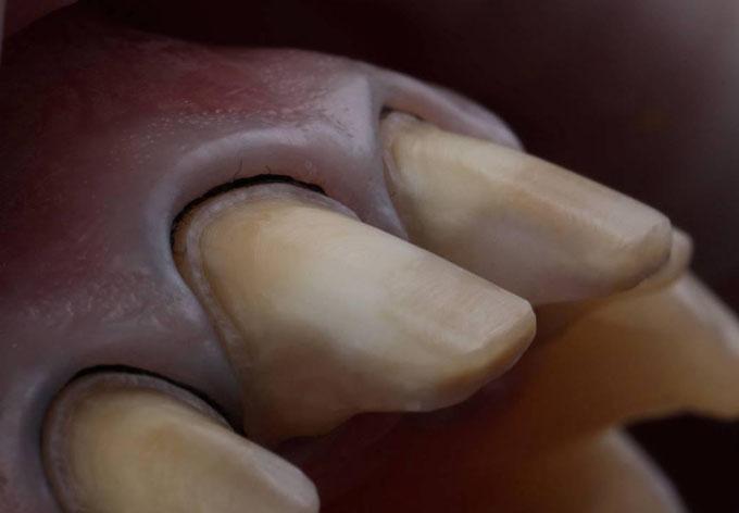 Фото 6. Вигляд препарованих зубів