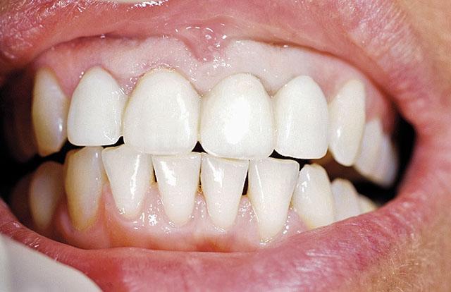 Мал. 1. Тимчасові коронки фронтальної групи зубів