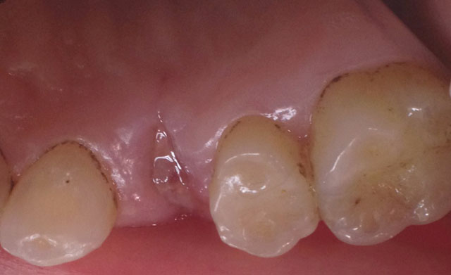 Стан зубного ряду після видалення зуба: оральна ділянка. Мал. 1а