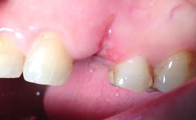 Стан зубного ряду після видалення зуба: вестибулярна ділянка. Мал. 1б