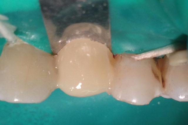 Формування проміжної частини протеза: вестибулярна поверхня. Мал. 16б
