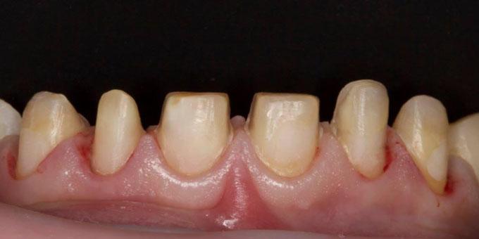 Препаровані зуби