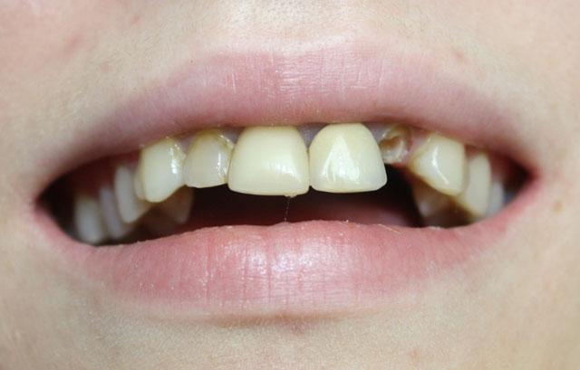 Мал. 1. Зовнішній вигляд верхніх фронтальних зубів пацієнтки до початку лікування: перелом 22-го зуба, дисгармонія кольору і форми