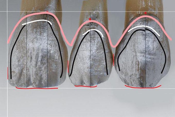 Фото 10. Форма лабіального краю