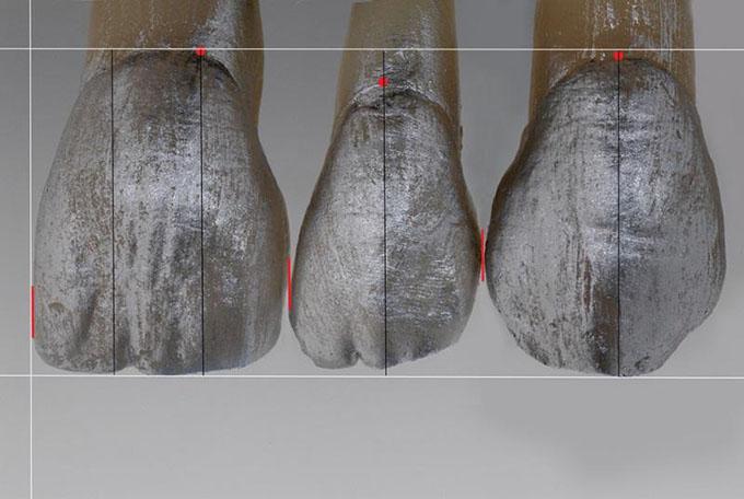 Фото 2. Ділянка контактних точок зміщується більше пришійково від різців до іклів