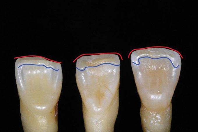 Фото 5. Ріжучий гребінь складається з лабіального краю (червона лінія) і лінгвального краю (синя лінія)
