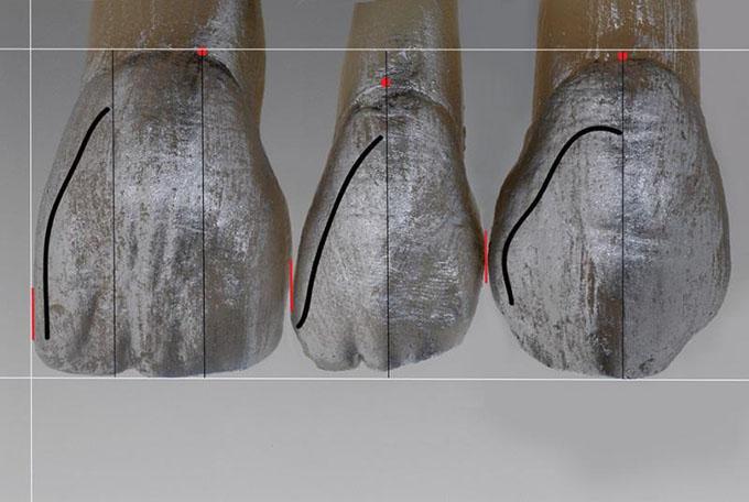 Фото 6. Лінія мезіального кута (чорна лінія)