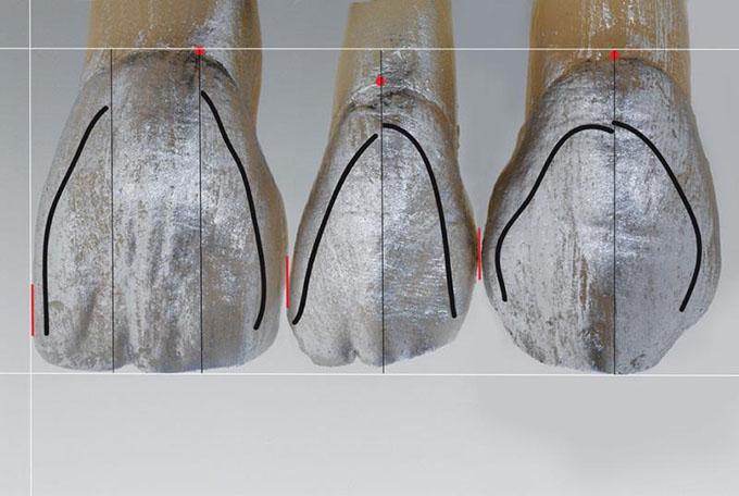 Фото 7. Лінія дистального кута зміщується від різців до іклів