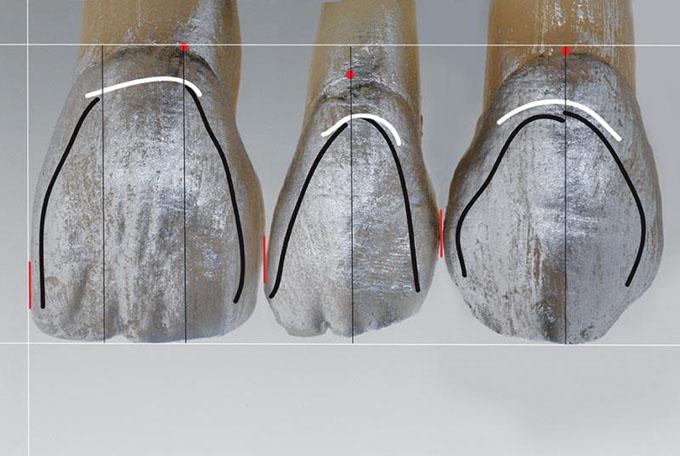 Фото 8. Висота пришійкового контуру (біла лінія) повторює контур м'яких тканин