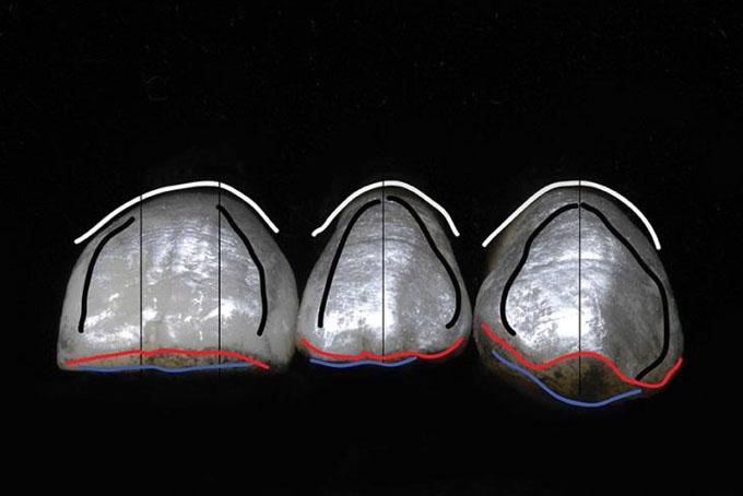 Фото 9. Висота пришійкового контуру (біла лінія) повторює контур м'яких тканин