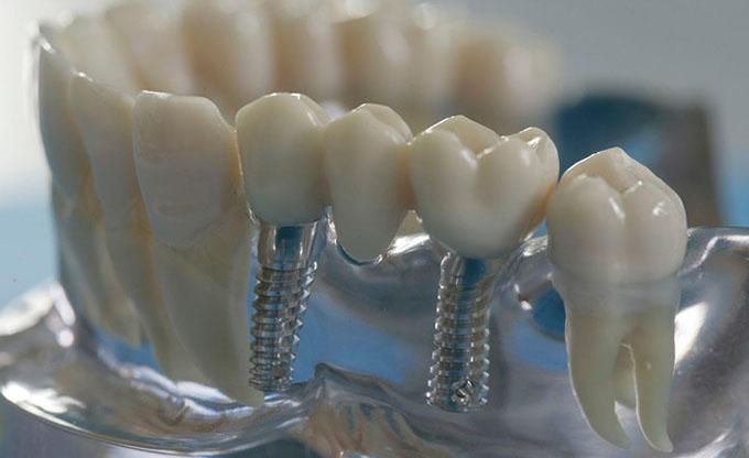 Мостовидний протез з опорою на імплантатах