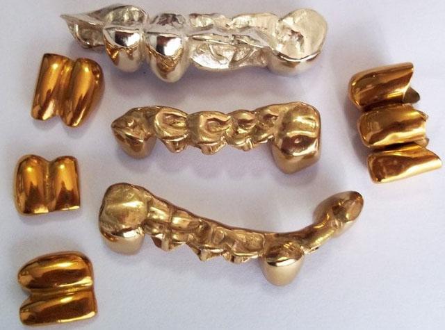 Зубні протези з нітрид титановим напиленням