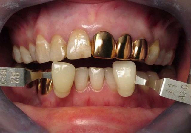 Порівняння кольору золотих коронок з кольором природних зубів
