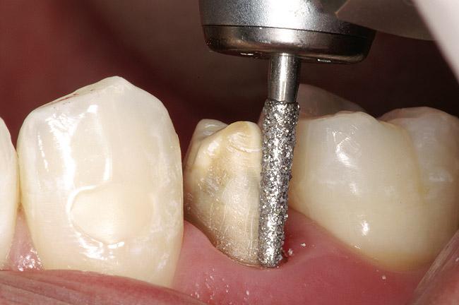 Препарування зуба
