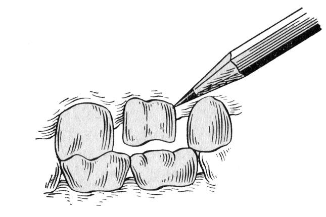 Окреслення шийки препарованого зуба