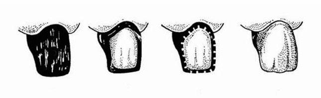 Схематичне зображення виготовлення коронки за Бєлкіним