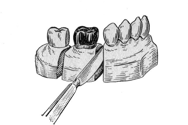 Вирізання фрагменту моделі зі змодельованим зубом
