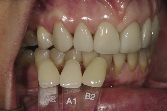 Мал. 2. Під час прийому зубний технік перебрав 3 зразки зі шкали Відтінку Vita – А1, А2 і В2. Хоча жоден з них точно не відповідав природному кольору зубів пацієнтки, таким чином була вибрана основа для подальшої роботи зубного техніка з підбору відтінку