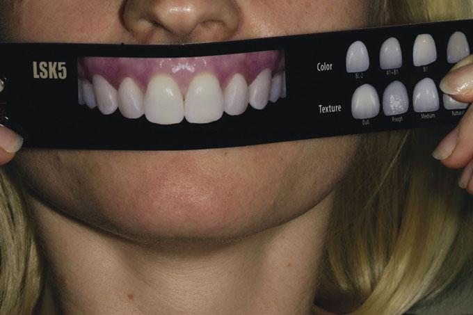Мал. 3. За допомогою Шкали підбору посмішки LSK121 пацієнтка мала можливість вибрати форму зубів, якій віддає перевагу для власної посмішки, а також їх відтінок і текстуру