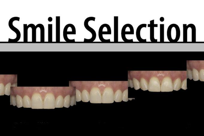 Мал. 4. На цій фотографії показано декілька можливих варіантів форми посмішки