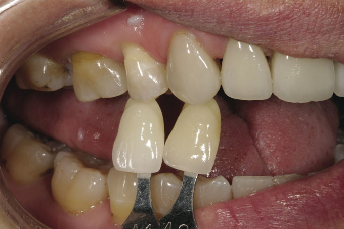 Мал. 8. Наступний крок: порівняти білу ділянку кальцифікації в зоні ріжучого краю зубів пацієнтки з двома зразками відтінків і з CS?G, щоб визначити, який з варіантів найбільш близький до її природного відтінку