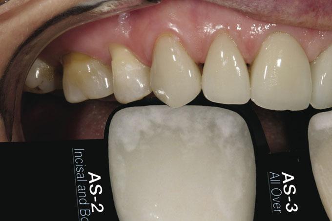 Мал. 9. Наступний крок: порівняти білу ділянку кальцифікації в зоні ріжучого краю зубів пацієнтки з двома зразками відтінків і з CS?G, щоб визначити, який з варіантів найбільш близький до її природного відтінку