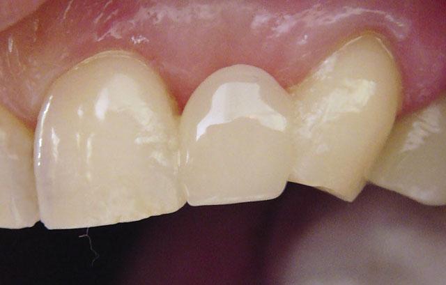 Мал. 9. Виготовлений вінір на 23 зуб