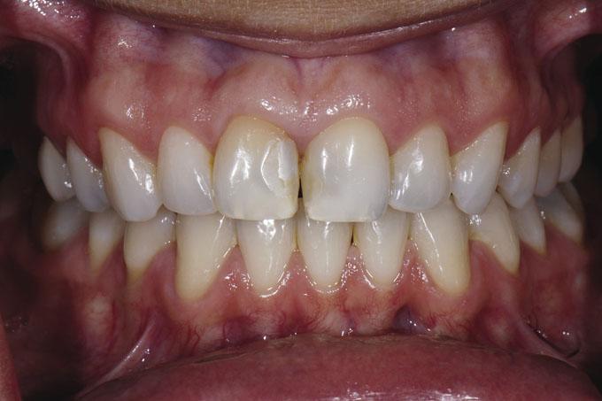 Мал. 10. Перед лікуванням: пацієнтка незадоволена зоною потемніння між верхніми передніми зубами