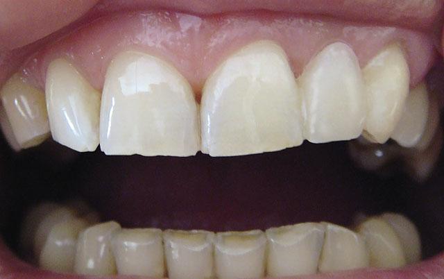 Мал. 10. Готова робота: виготовлений адгезивний протез, відтворений відсутній 22 зуб, змінені форма і положення 23 зуба