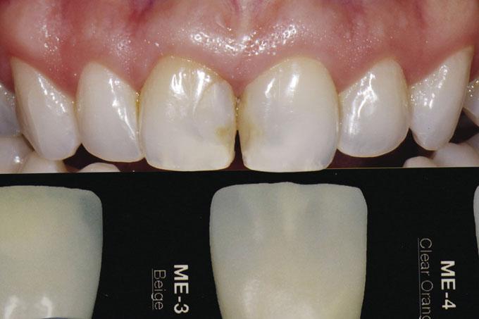 Мал. 12. Відтінок мамелонів пацієнтки звіряється зі шкалою відтінку LSK і визначається як ME-3 бежевий