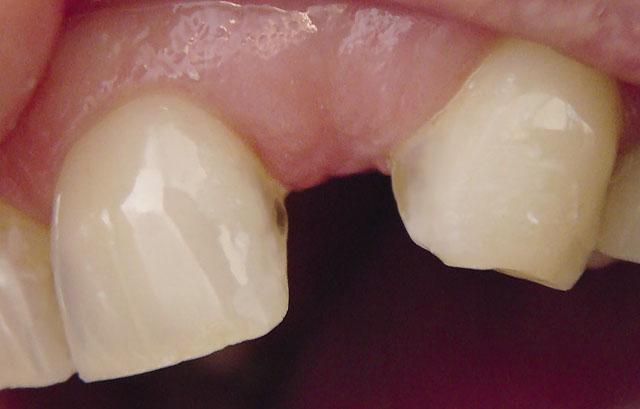 Мал. 1. Включений дефект зубного ряду: відсутній 22 зуб, 23 зуб стертий по ріжучому краю, зміщений у мезіальний бік