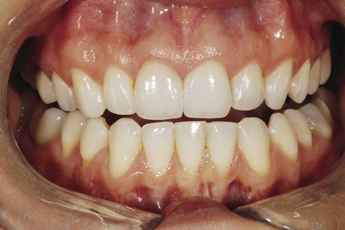 Мал. 21. Вигляд з ретрактором: вініри пацієнтки повністю маскують зміну кольору її природних зубів