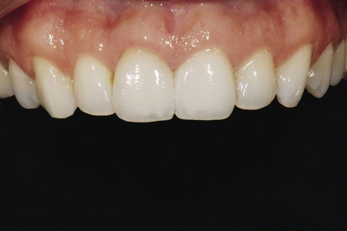 Мал. 22. Закривши нижню частину рота пацієнтки, зубний технік може сконцентруватися на припасуванні, контурах, формі і розмірі верхніх передніх зубів