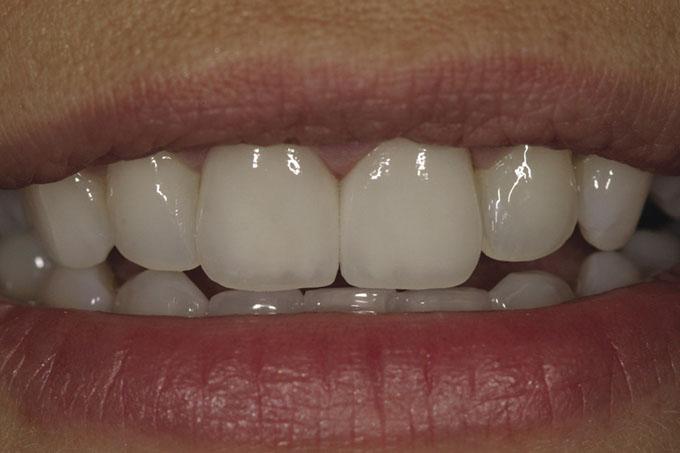 Мал. 23. Остаточний вигляд реставрації – пацієнтка щаслива і упевнена у своїй посмішці