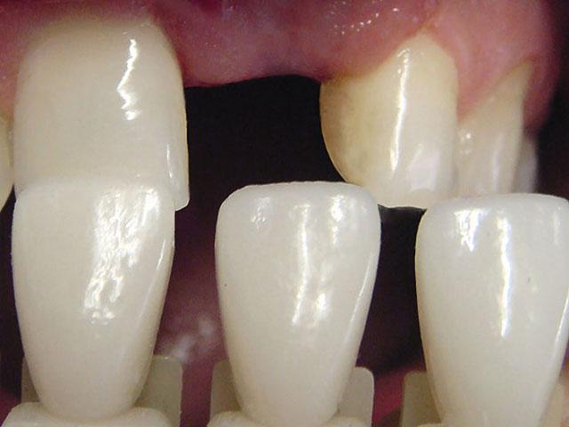 Мал. 3. На колірній карті відмічені відтінки і ступінь прозорості зубів, які реставрують