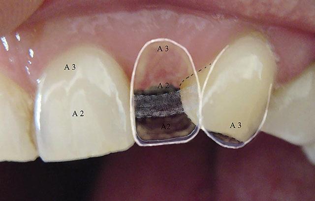 Мал. 4. На колірній карті відмічені відтінки і ступінь прозорості зубів, які реставрують