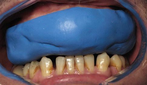 Фото 9. Введення відбитку з композитним матеріалом у порожнину рота