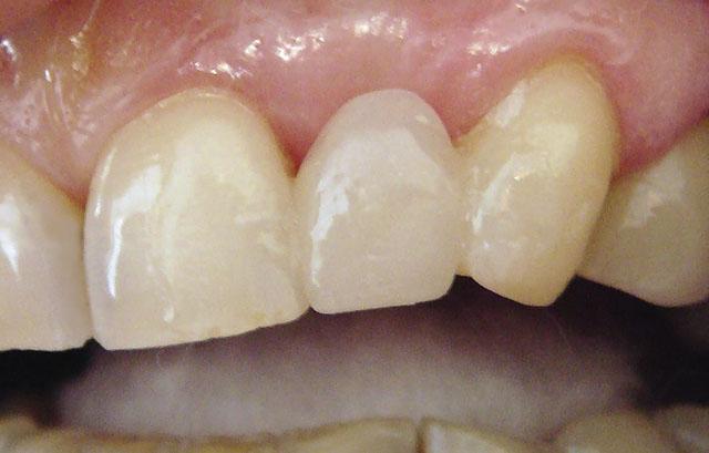 Мал. 8. Сформований штучний 22 зуб