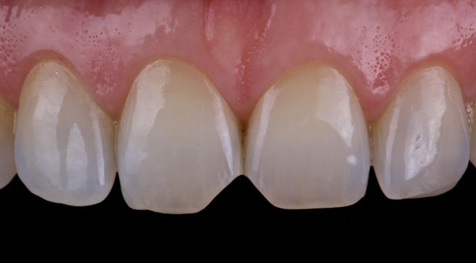 Мал. 2. Зуби мають поверхню з мінімальним мікрорельєфом