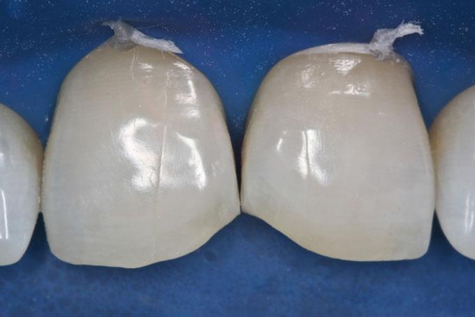 Мал. 5. Зуби були піддані піскоструминній обробці